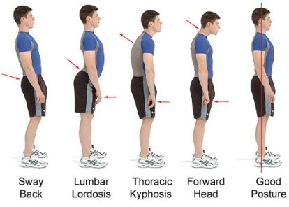 Different-types-of-posture